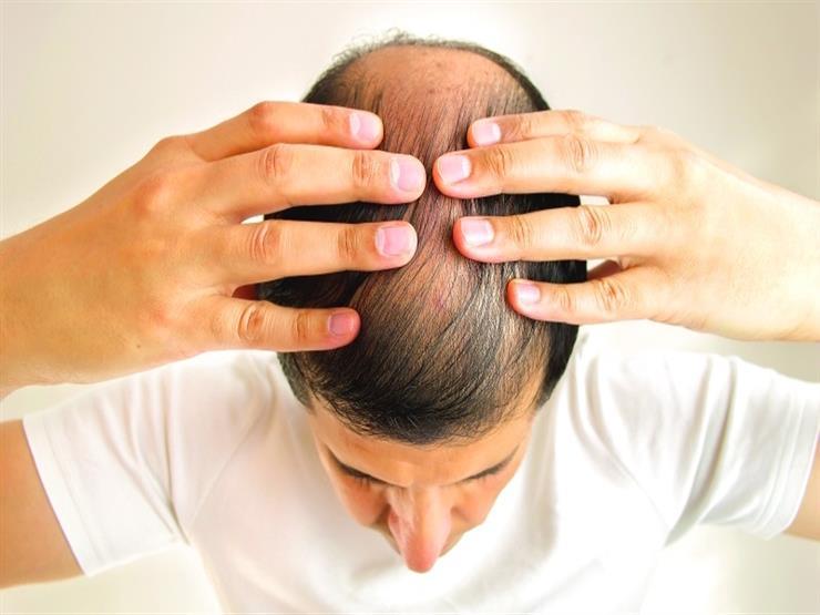 وداعا للصلع.. علماء يطورون علاجا لإعادة الشعر مرة أخري