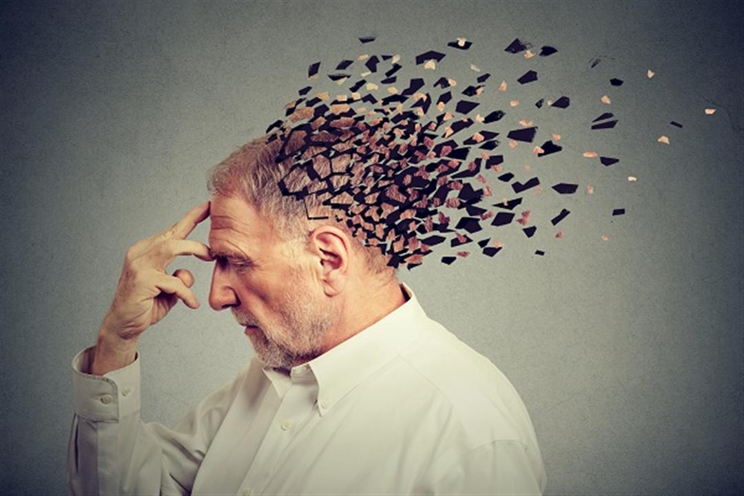 خبراء يحددون الأعراض المبكرة  للإصابة بألزهايمر