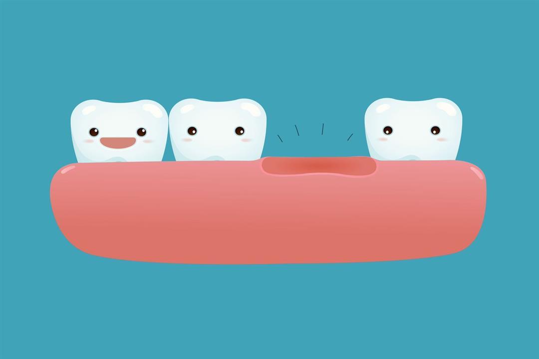 تجنّب البقوليات.. 4 أطعمة تساعد على إعادة نمو الأسنان المفقودة