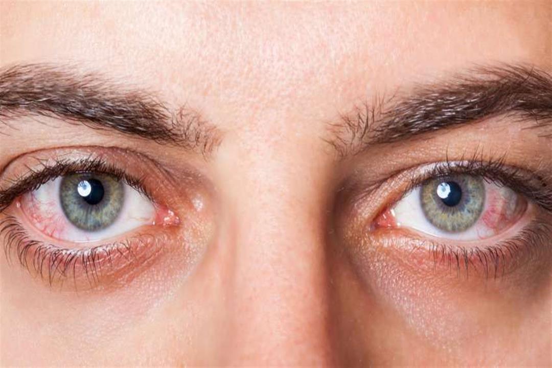 7 علاجات فعالة لتخفيف جفاف العين