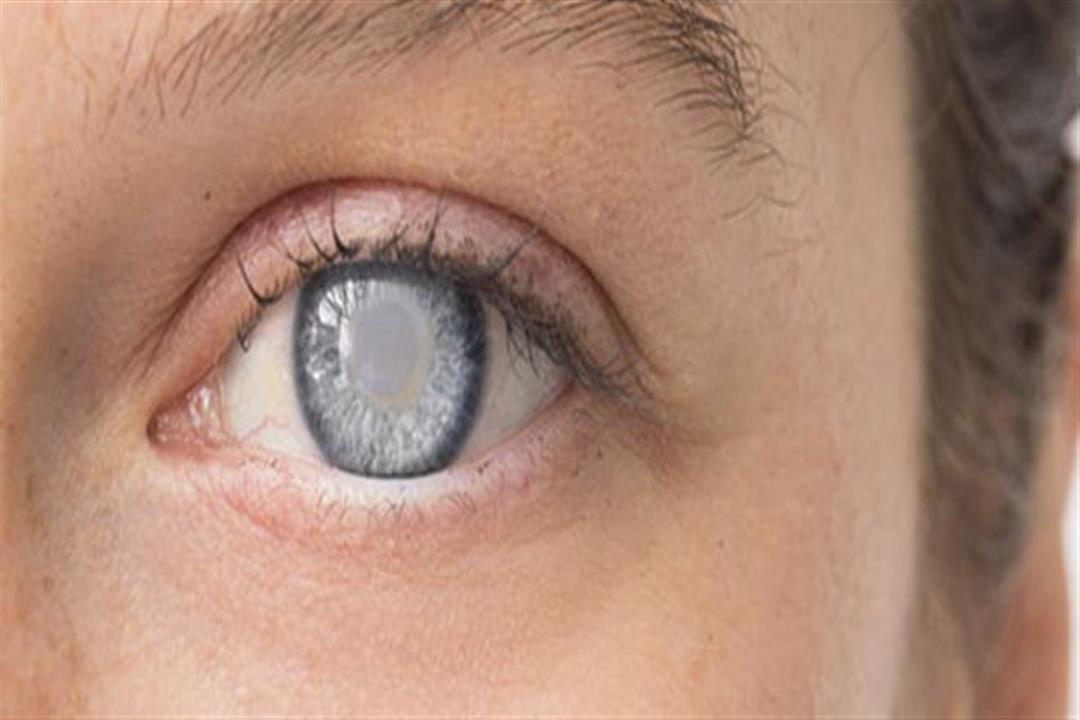 طبيب يحدد أفضل طريقة لعلاج  إعتام عدسة العين