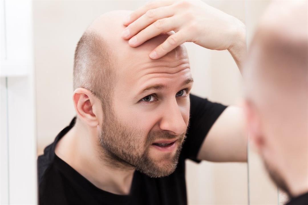 قد يهدد النساء أيضًا.. 5 طرق فعالة لإبطاء تساقط الشعر الوراثي