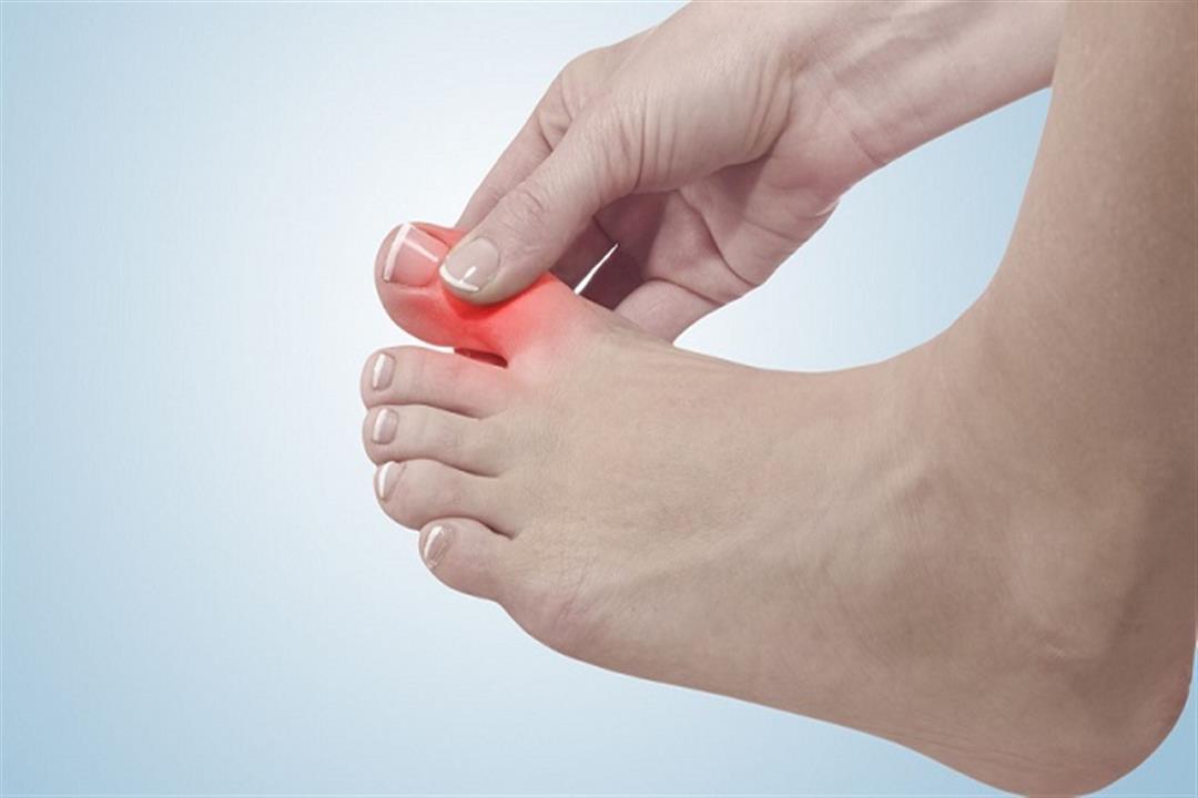 بخلاف برودة الطقس.. أسباب مرضية متعددة قد تؤدي لتنميل أصابع القدمين