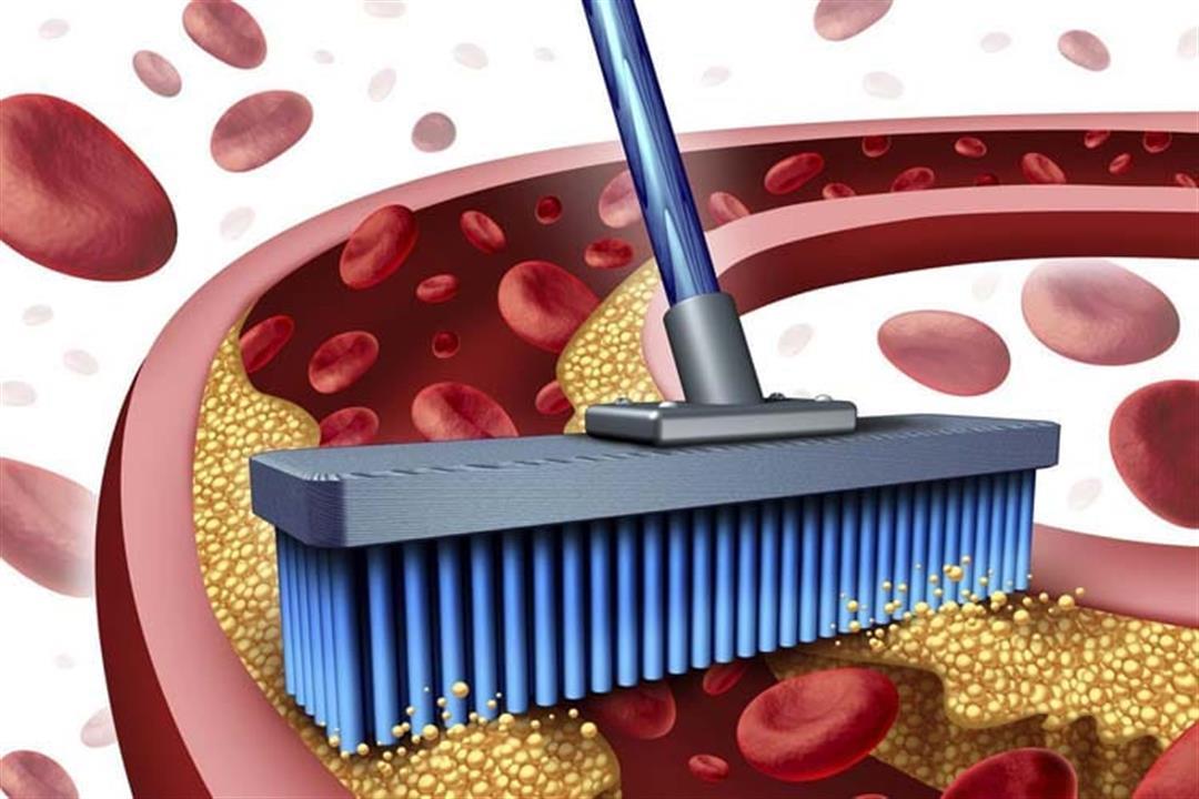 يهددك بأمراض القلب.. مكملات غذائية لخفض الكوليسترول الضار بالدم