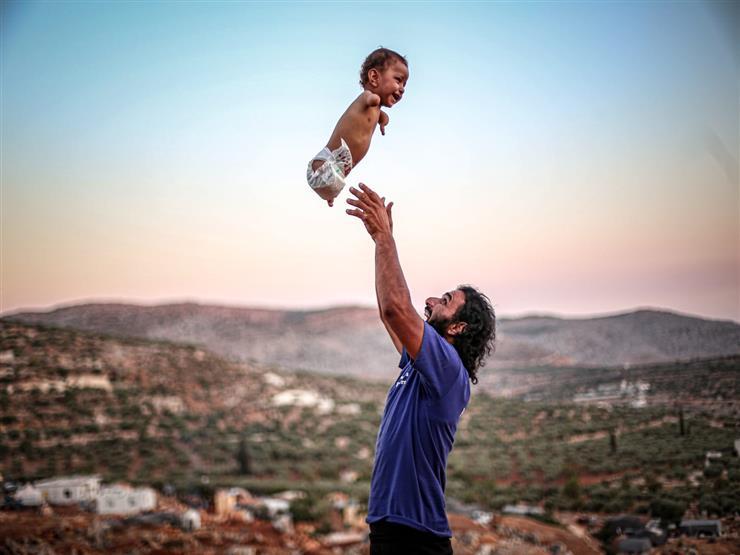 ضحكة في سماء المخيم.. صورة تساعد في تركيب أطراف لطفل سوري