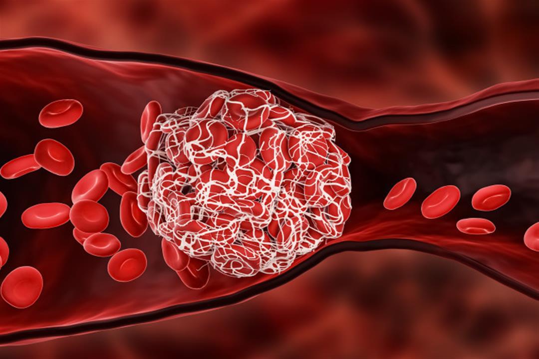 الجلطات الدموية.. 4 فئات معرضة للإصابة بها (فيديوجرافيك)