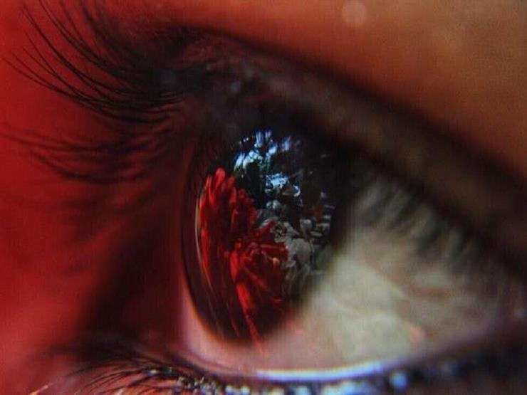 علامات في العين يمكن أن تكشف عن 8 حالات صحية خطيرة مخفية thumbnail