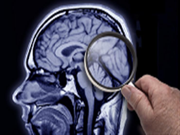 خبراء يصدرون تحذيرا من طعام يسبب تدهور الدماغ في شهر thumbnail