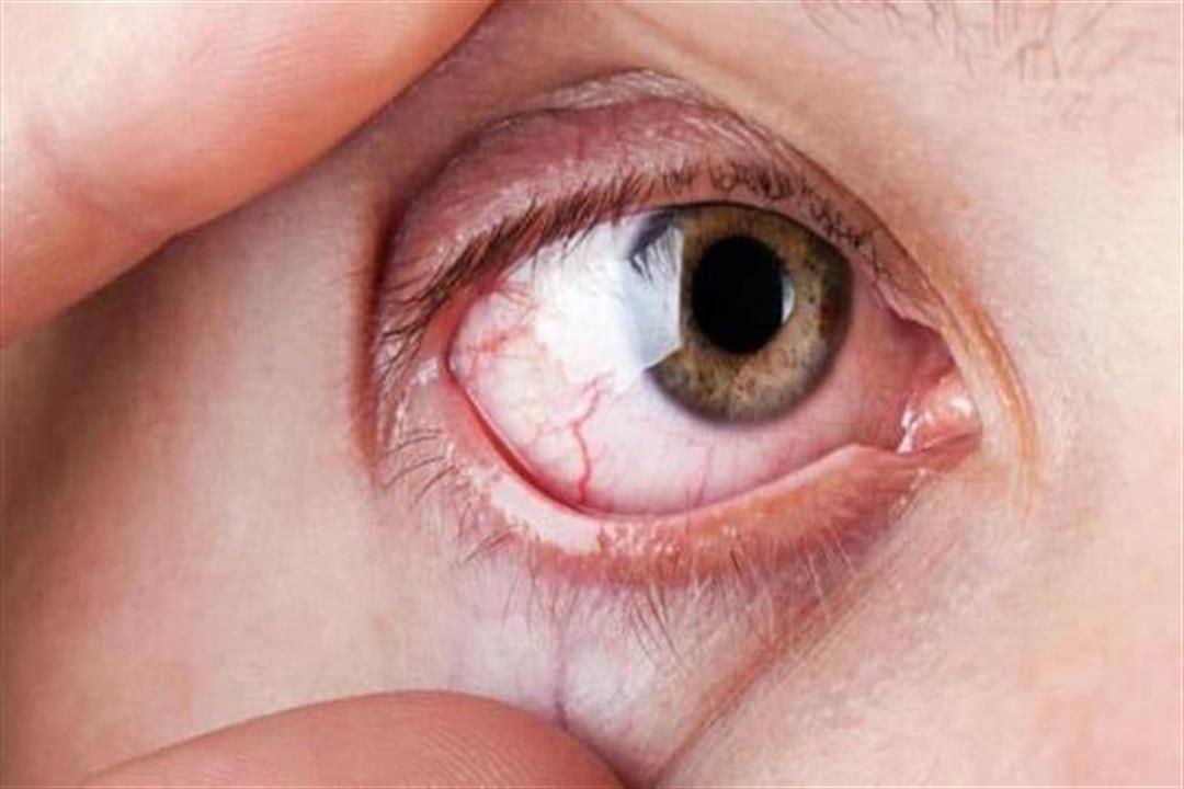 جفاف العين علامة على التهاب المفاصل.. ما العلاقة؟