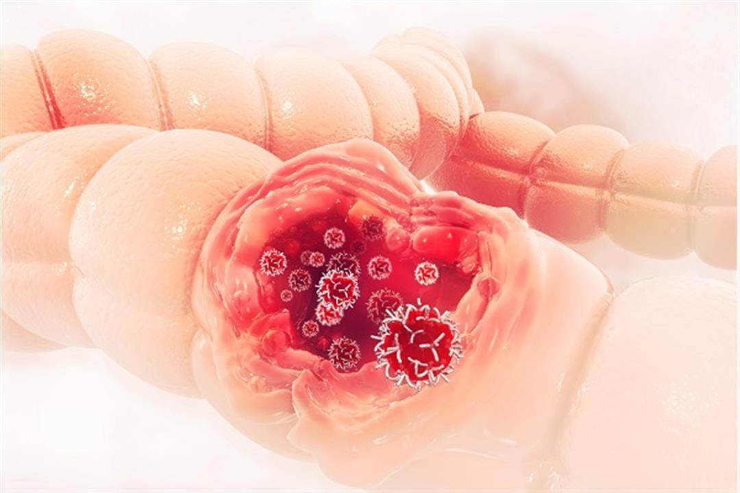 أبرزها الإمساك.. 8 أعراض تكشف إصابتك بسرطان القولون