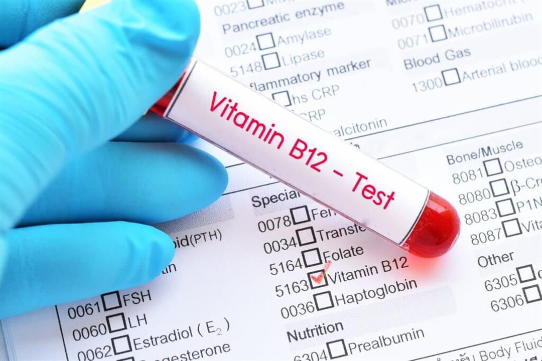برغم فوائده.. 8 أعراض مزعجة لزيادة مستويات فيتامين ب 12 في الجسم