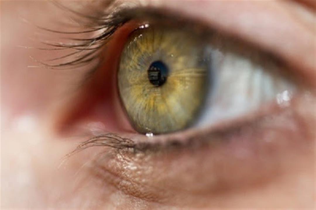 هل يمكن تغير لون العينين مع التقدم في السن؟.. طبيبة توضح