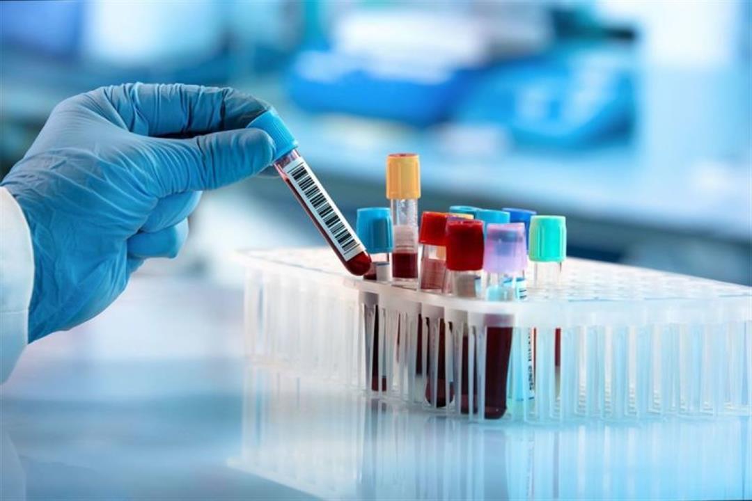 "بخلاف كورونا.. أمراض يكشف عنها تحليل ""CRP"""