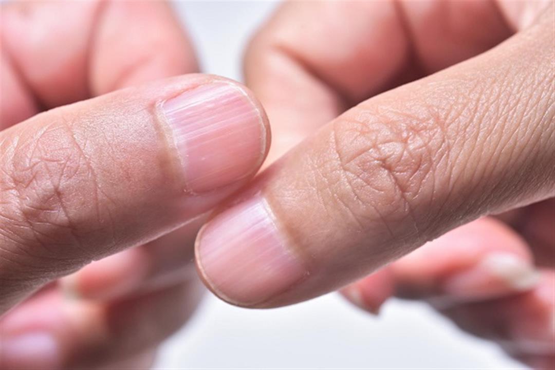 فيروس كورونا.. علامة في الأظافر تمكنك من الكشف عن الإصابة