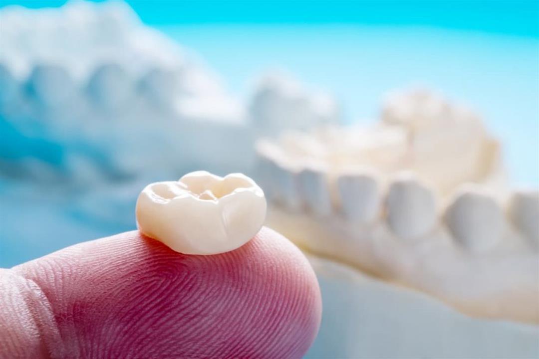 ماذا تفعل عند سقوط حشوة أسنانك؟
