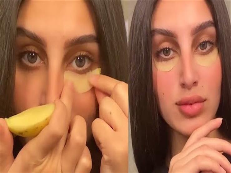 4 طرق طبيعية لعلاج انتفاخ العينين