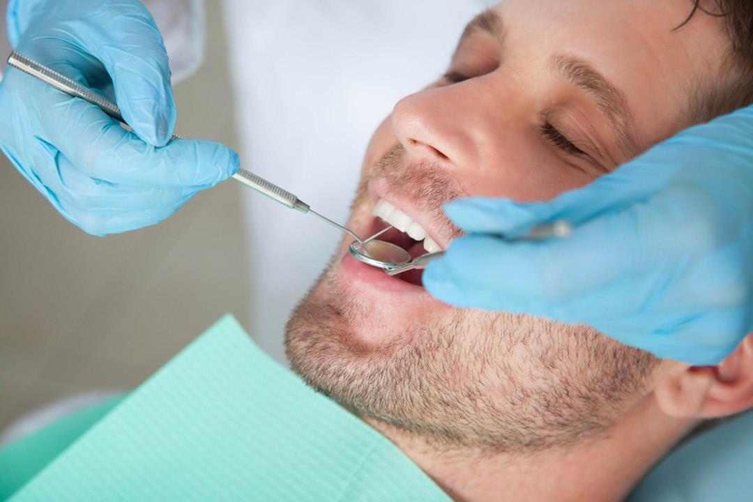 من فمك.. كيف يعرف طبيب الأسنان أنك مدخن؟