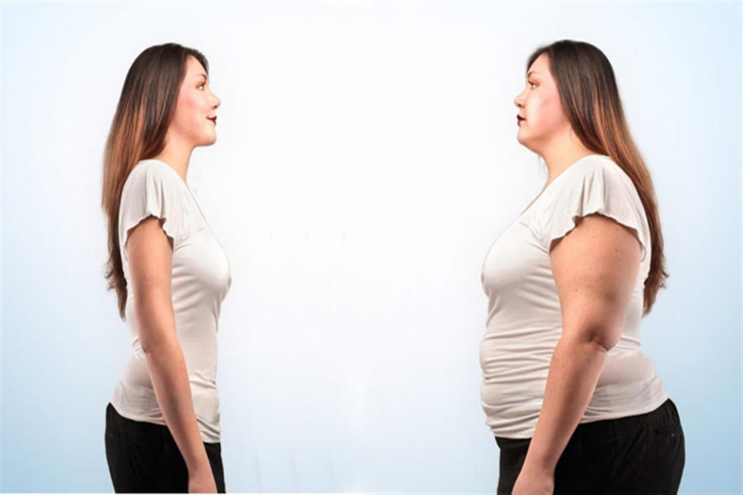 قبل إجراء جراحة لخسارة الوزن.. معلومات مهمة يجب معرفتها