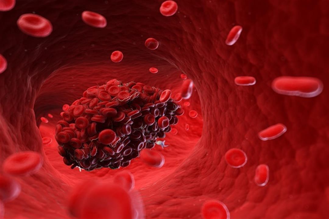 لقاحات كورونا وحبوب منع الحمل.. أيهما أكثر تسببًا للجلطات الدموية؟