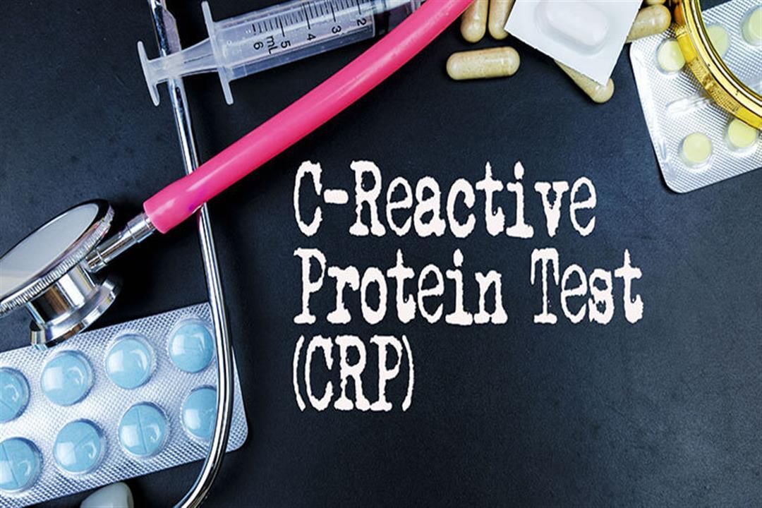 تحليل CRP للحامل.. ماذا يشير ارتفاعه؟