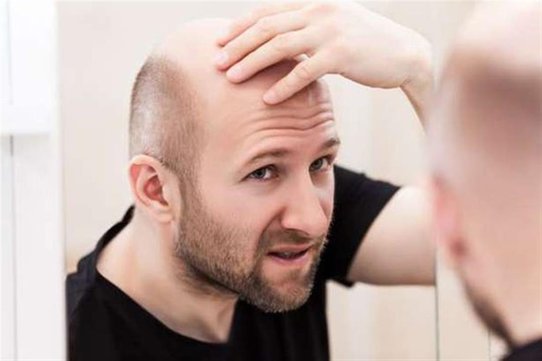 دراسة صادمة: الصلع يزيد مخاطر الإصابة كورونا