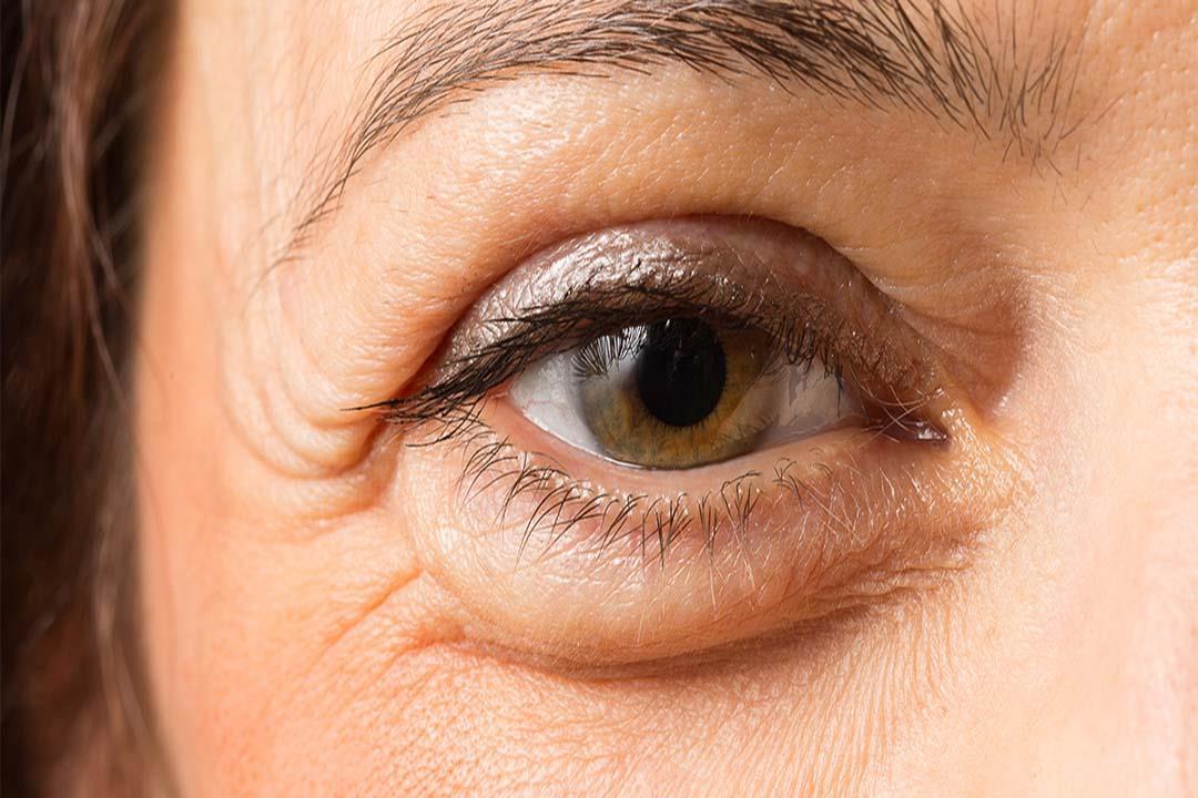 انتفاخ الجفن واحتباس السوائل بالعين.. ماذا تعرف عن الوذمة؟