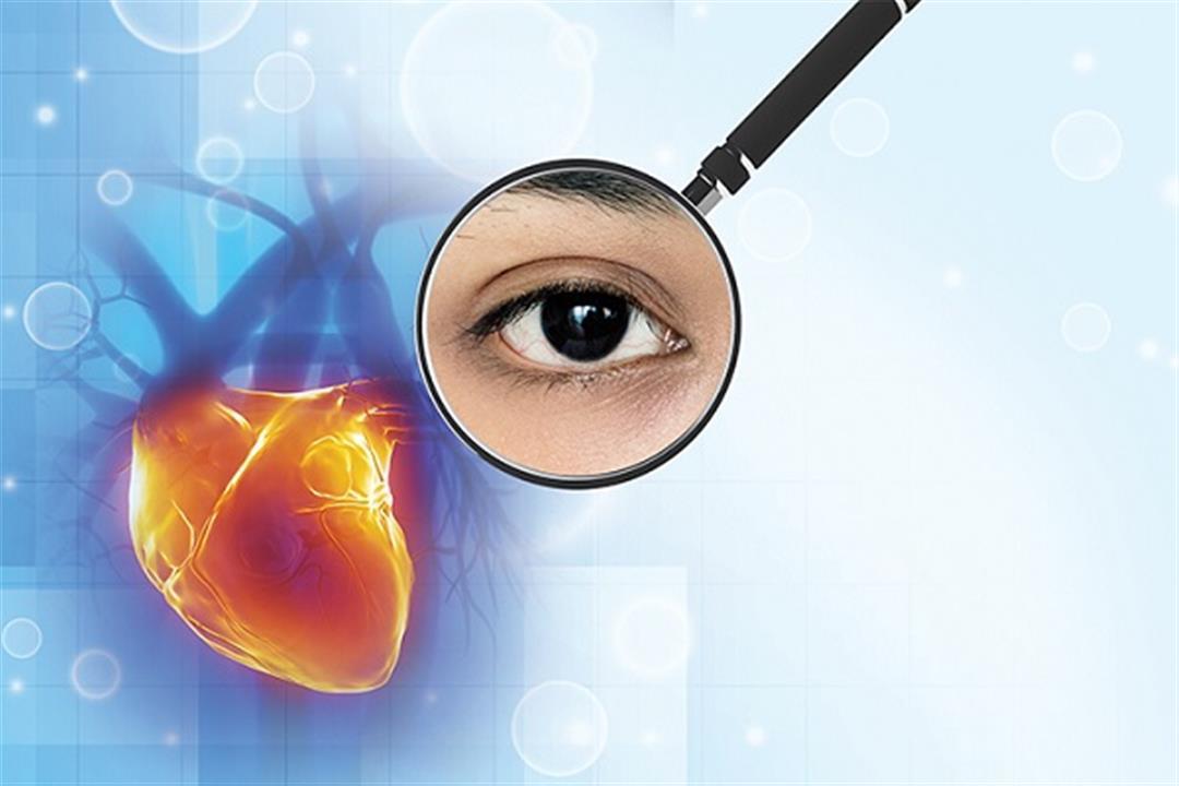 كيف تطمئن على صحة قلبك من عينيك؟