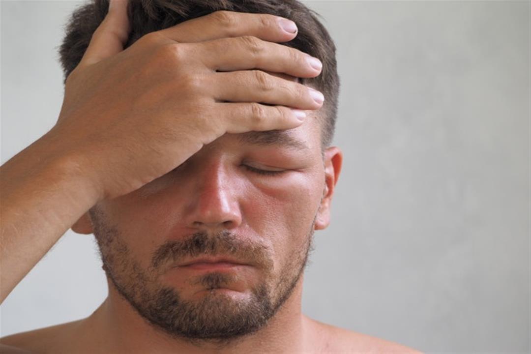 انتفاخ العينين بعد الاستيقاظ من النوم.. إليك أسبابه وطرق التخلص منه