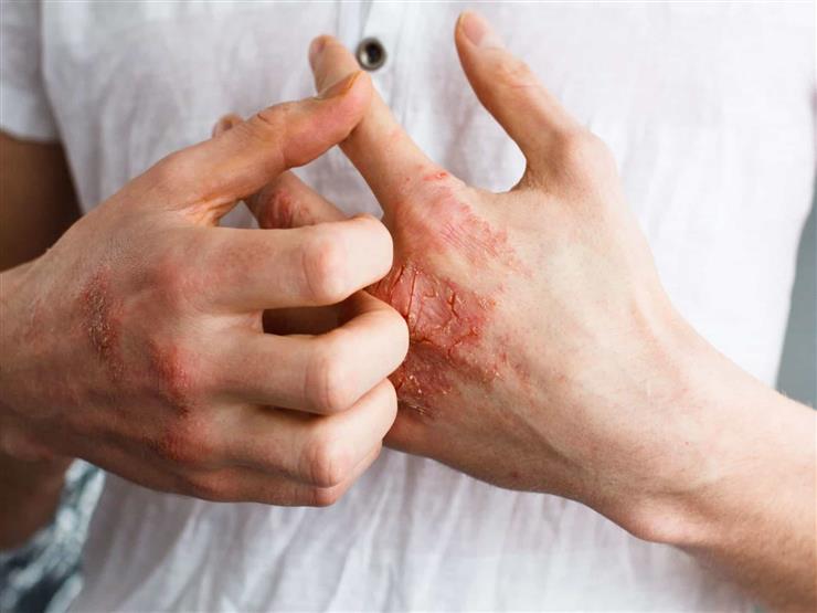 """""""مرض غير مرئي"""".. علامة على الجلد تشير إلى الإصابة بارتفاع الكوليسترول"""